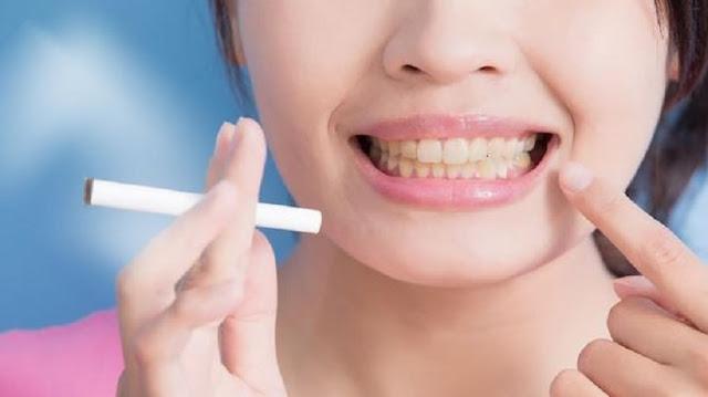 Ingin Gigi Putih Dan Bersih, Hindari Kebiasaan Buruk Ini