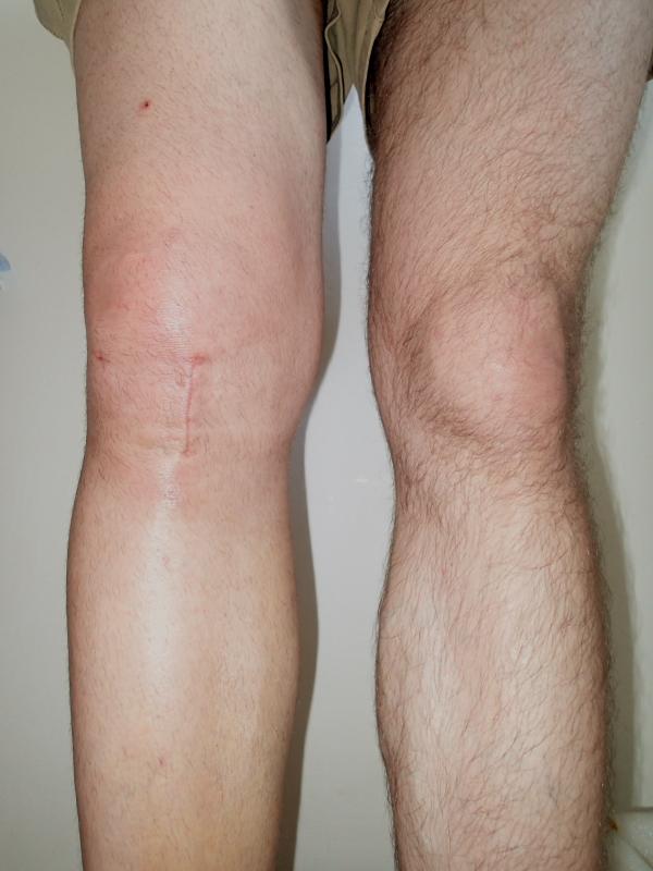 Proč bolí rameno, kyčel, kolena a další klouby