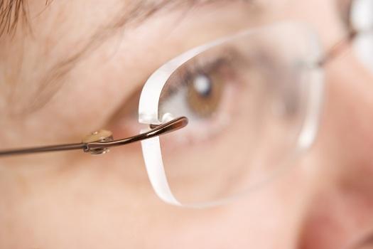 067d8790a1009 Armação do tipo 3 peças não ajuda a cobrir ou disfarçar as espessuras de  borda das lentes com esférico negativo.