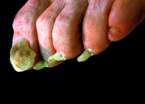 The Toes Grow Abnormally Often Curling Inwards Or Bending To Left Right As Particularly Shown With Toe At Lower Picture Hence Name Ram S