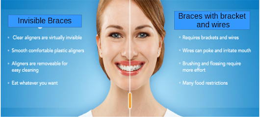 Invisible Braces Takes A Modern Approach To Straightening Teeth