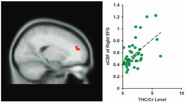 図:THCと脳血流