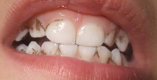 Braune Verfärbung Zähne