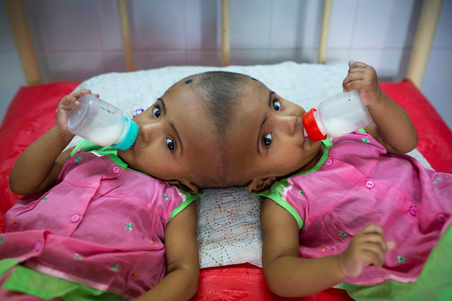 Bangladeshi twins born conjoined at skull
