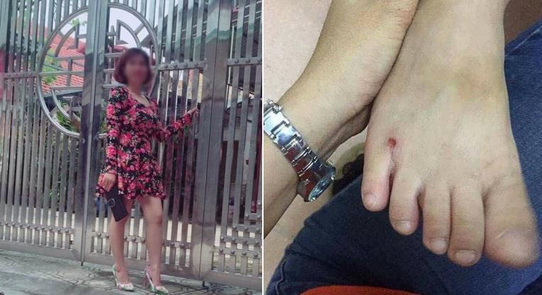 Cô giáo mầm non bất ngờ lên tiếng sau vụ việc đánh con riêng của chồng phải nhập viện