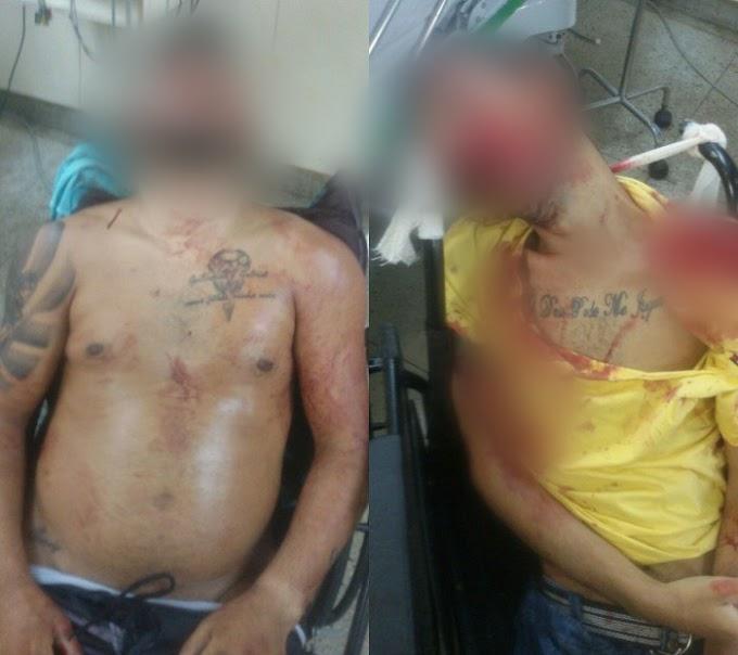 Duplo Homicídio: Grupo armado executa dois homens no bairro das Quintas