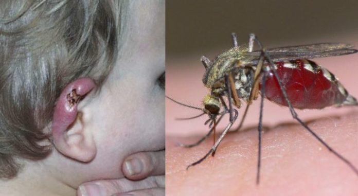 Κόκκινος Συναγερμός σε 25 Δήμους. Μολυσμένα κουνούπια μεταδίδουν τον Ιό του Δυτικού Νείλου. Δείτε τη λίστα