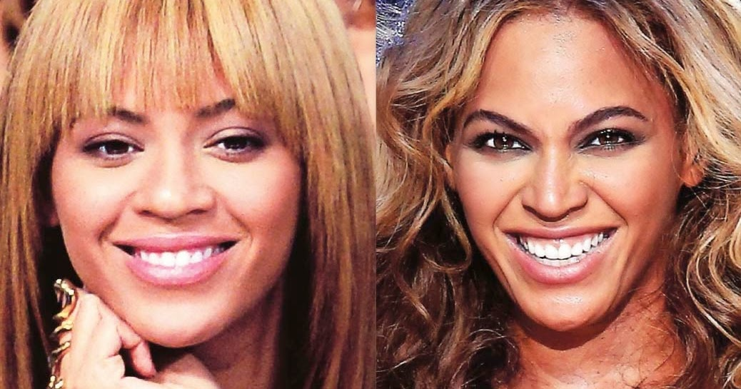 Nose Job Before And After Beyonce Plastic Surgery Before