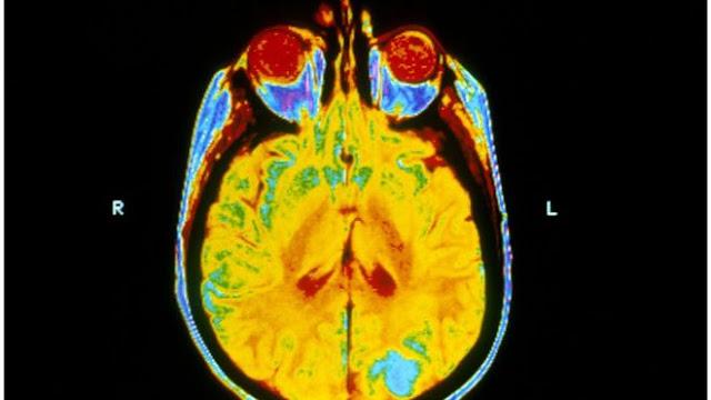 Brain Radiotherapy