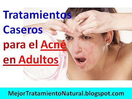 El tratamiento láser del acné las revocaciones el tratamiento