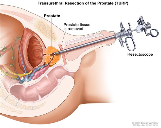 prostate cancer treatment image from www.cancer.gov