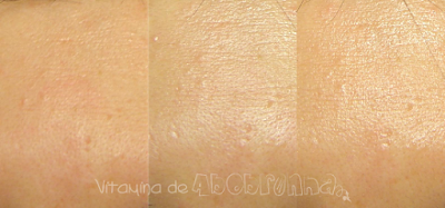 comparativo da pele com Bioré UV AQUA Rich Watery Gel SPF50+ PA++++