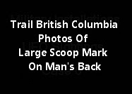 Trail British Columbia Photos Of Large Scoop Mark On Man's Back