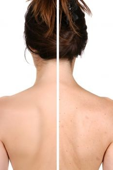 Best Treatment For Acne Scars On Back