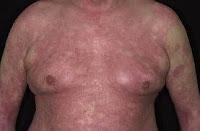 Cara mengobati gatal eksim pada perut dan dada
