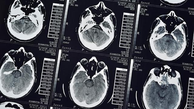 Afirman que los síntomas del alzhéimer pueden estar 'escondidos' durante 30 años