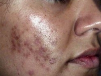 Is It Possible To Get Rid Of Acne Scars ?