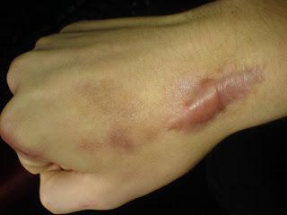 Comment se débarrasser des cicatrices de chéloïdes naturellement