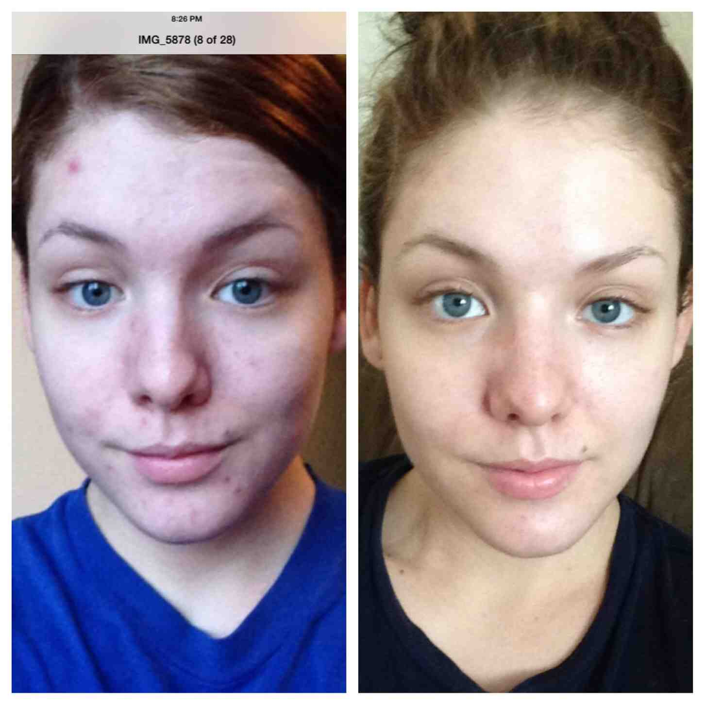 I Wanted To Post A Before And After Picture Of The: MHG Miracle Gel: MHG Miracle Gel
