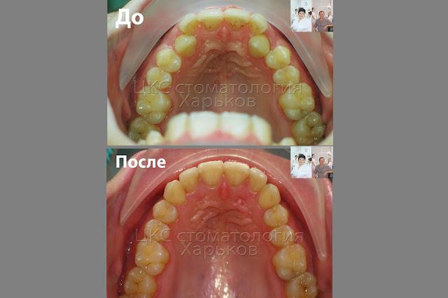 Форма зубного ряда. До и после ортодонтического лечения