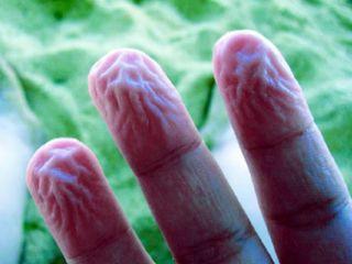 ظاهرة تغضن الأصابع