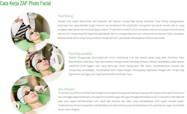 zap, photo-facial,laser, ipl