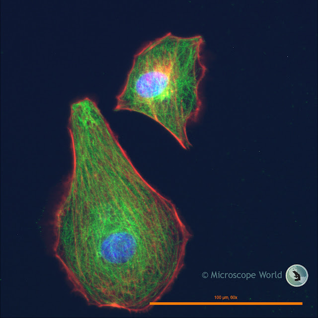 Fein Optic RB30-GFP fluorescence microscope image.