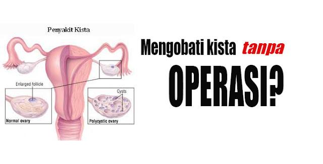 Cara Mengobati Kista Tanpa Operasi