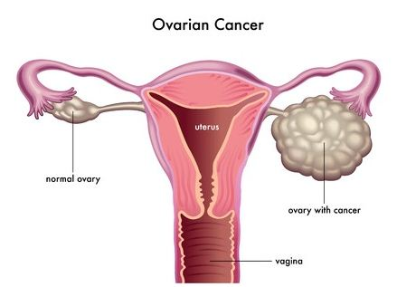 Can You Get Ovarian Cancer After Hysterectomy