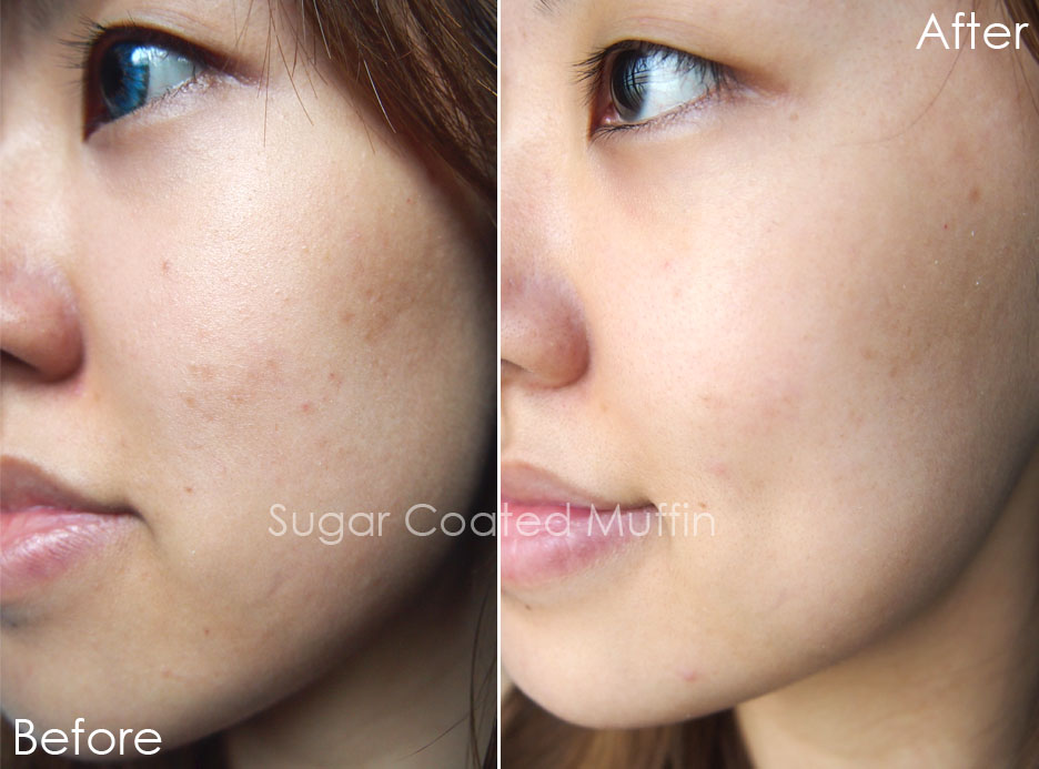 Isabel Lee Malaysian Beauty Lifestyle Blogger Kiehl S Clearly Corrective Dark Spot Solution