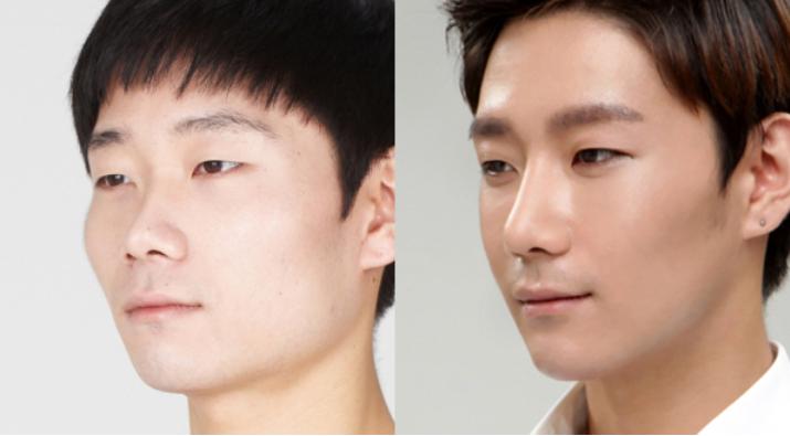 Asian men plastic surgery apologise, but