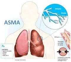 Pencegahan penyakit asma