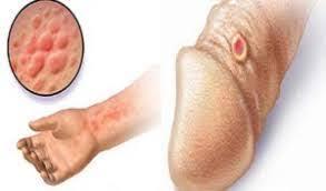 Penyakit Sipilis Kronis