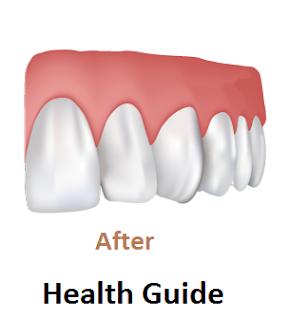 Healthy Teeth and Gums.