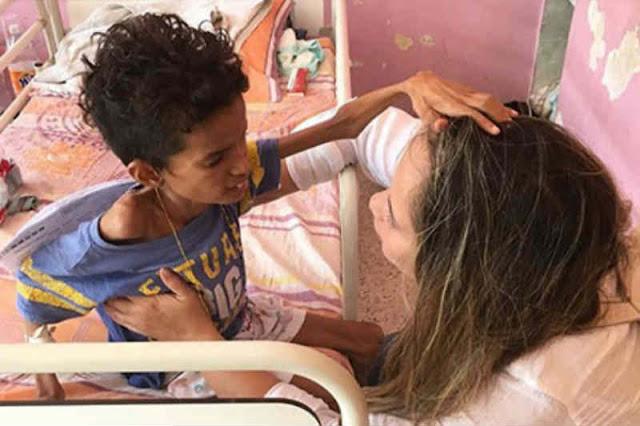 Murió desnutrido  joven de 13 años con apenas 11 kilos en Portuguesa
