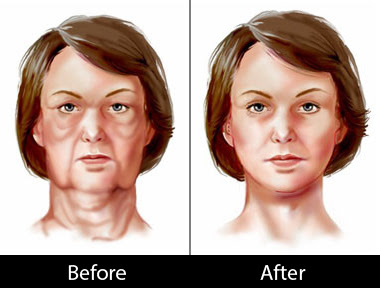 face-lift-before-after