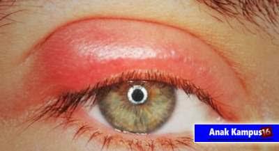 cara mengobati dan mengatasi mata bengkak secara alami dan cepat