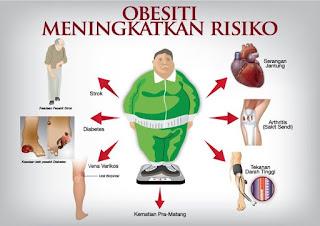 Bahaya Obesitas Bagi Kesehatan Tubuh