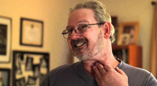 Throat Cancer Survival Rate After Surgery