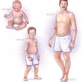 Cara Mengatasi Dermatitis Atau Eksim Secara Alami