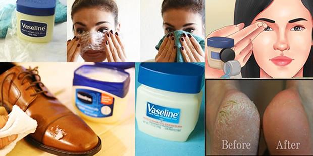 vaseline-uses