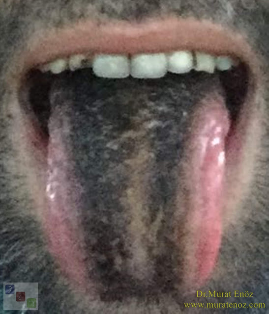 Black Hairy Tongue - BHT - Lingua Villosa Nigra - Black Hairy Tongue Causes - Black Hairy Tongue Treatment - Black Hairy Tongue Symptoms - What is black hairy tongue?