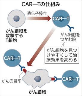 CAR-T  キメラ抗原受容体T細胞(CAR-T)医療