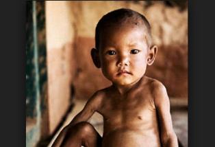 Intervensi dan rasional ketidakseimbangan nutrisi kurang dari kebutuhan tubuh NANDA NIC NOC