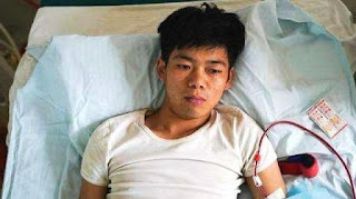 See this Chinese Boy Who Sold His Kidney To Buy An iPhone Now Disabled For Life