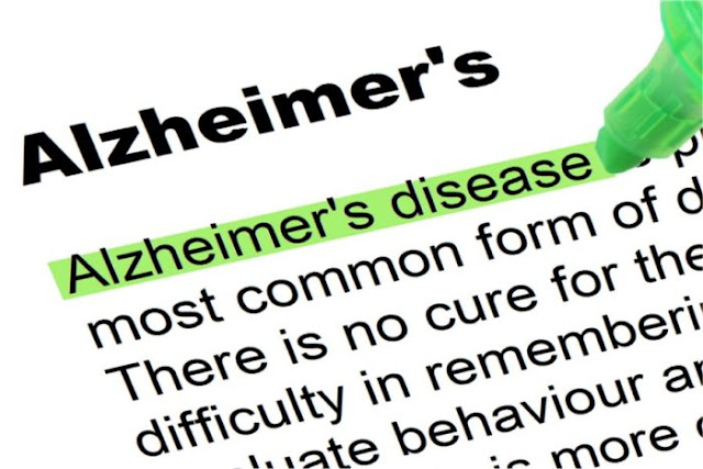 Alzheimer's Disease - Symptoms, Treatment and Prevention