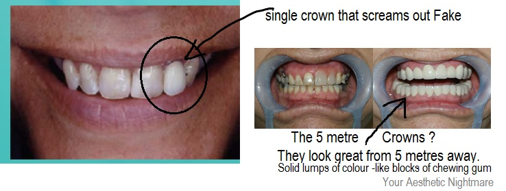 How Much Is A Crown >> What Is The Lifespan Of A Dental Crown Or Cap And Why Do Prices Vary
