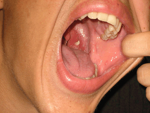 Tonsillolith in mouth