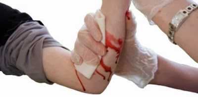 Penanganan luka