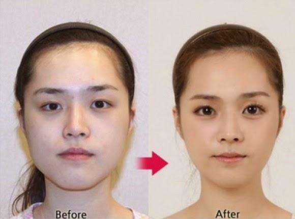 61 Contoh Foto Operasi Plastik Orang Korea
